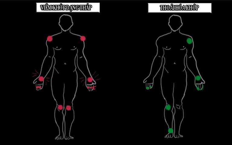 phân biệt thoái hóa khớp và viêm khớp dạng thấp