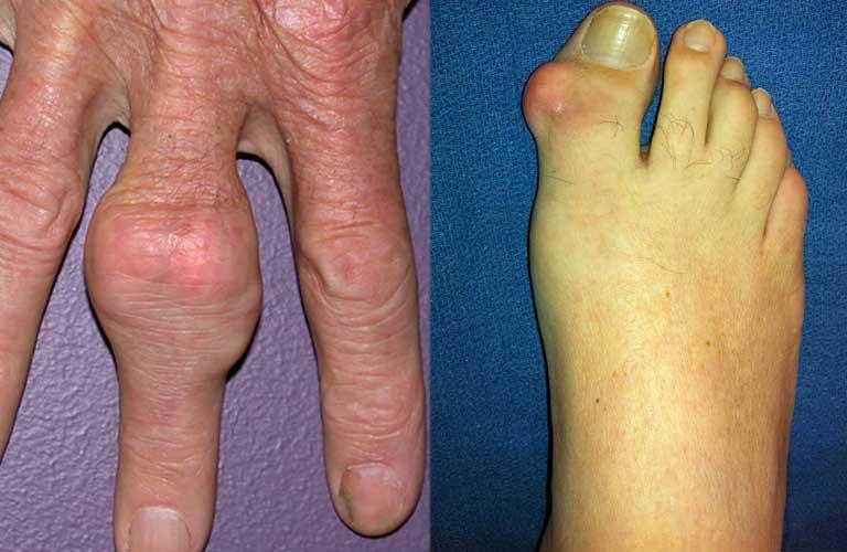 Cách phân biệt viêm khớp dạng thấp và gout