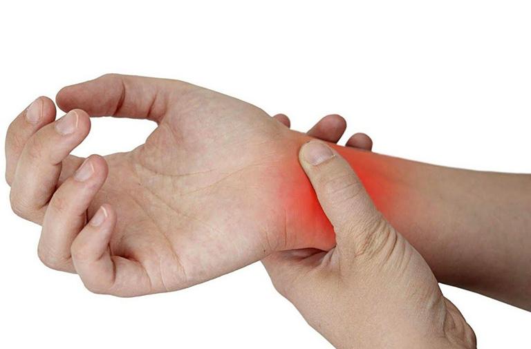 Viêm khớp phản ứng gây sưng khớp