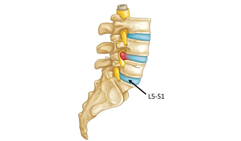 Thoát vị đĩa đệm cột sống thắt lưng L5 S1là một vấn đề phổ biến