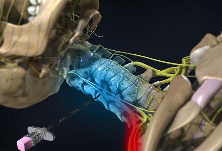 tiêm ngoài màng cứng chữa thoát vị đĩa đệm