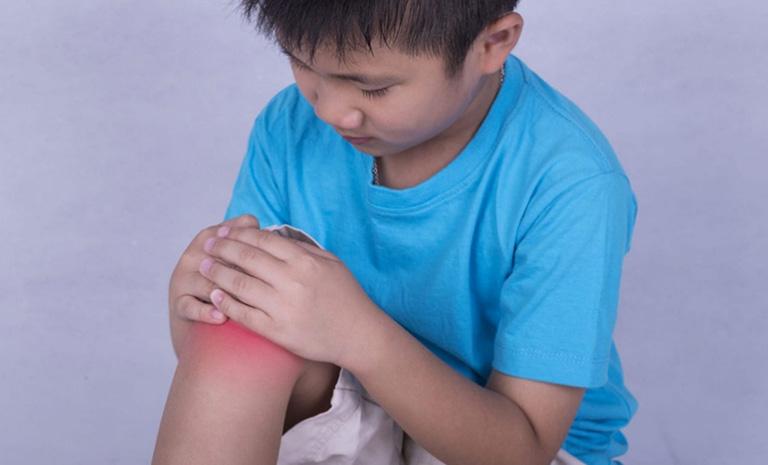 Viêm khớp dạng thấp trẻ em thể viêm ít khớp là tình trạng viêm khớp làm ảnh hưởng ít hơn 4 khớp