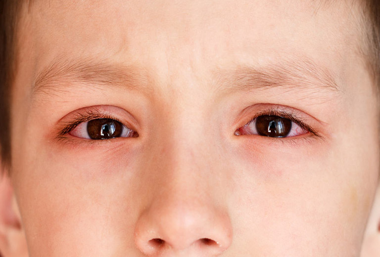 Viêm mắt, viêm màng bồ đào, viêm mống mắt là những biến chứng thường gặp ở trẻ em bị viêm khớp dạng thấp