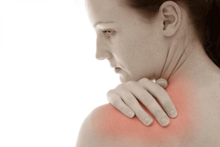 Viêm quanh khớp vai là tình trạng viêm và đau những cấu trúc phần mềm quanh khớp vai