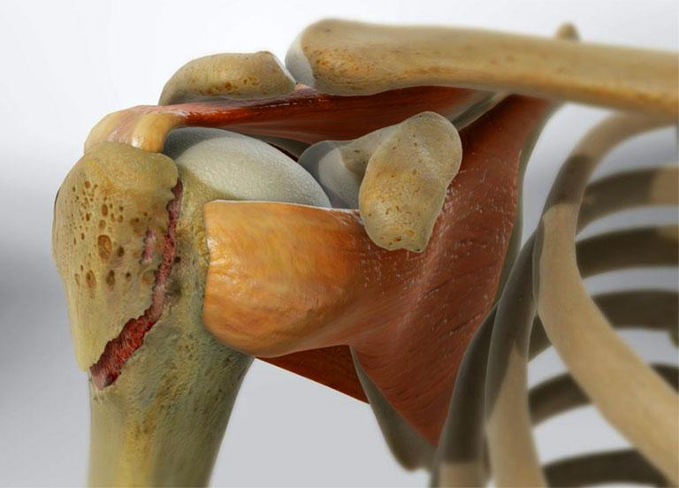 Gãy xương