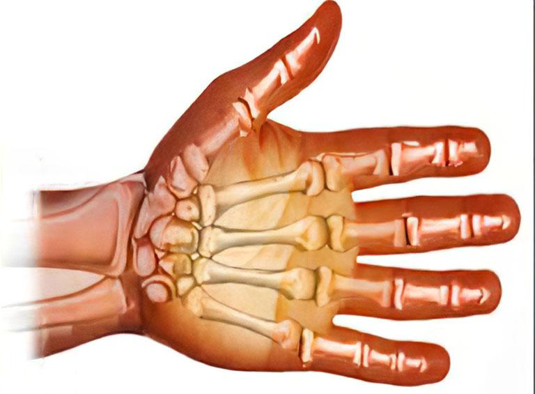 xương cổ tay