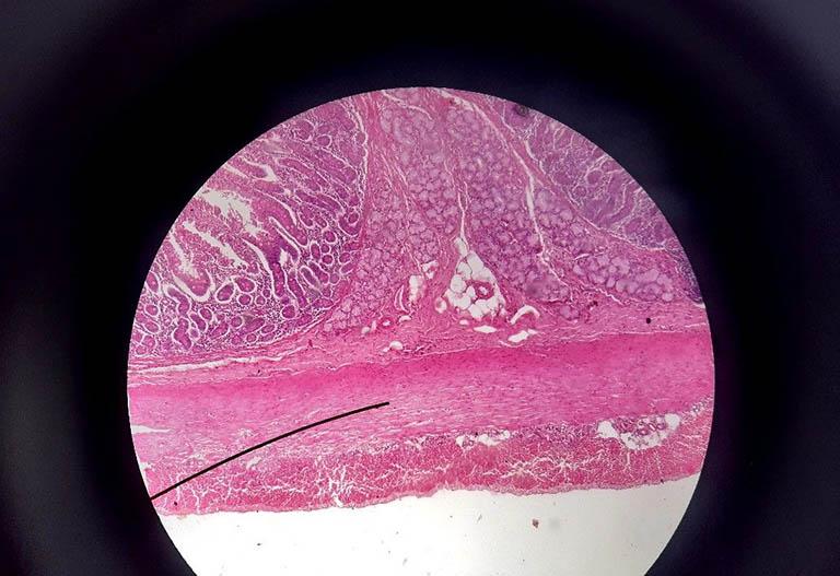 Cấu trúc phân tử của cơ trơn