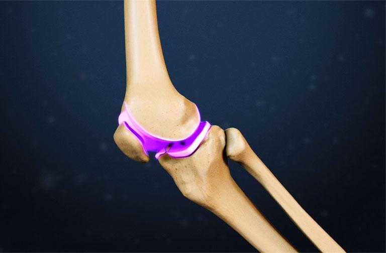 xương khớp gối