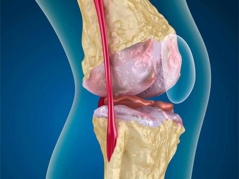 Điều trị thoái hóa khớp gối bằng tế bào gốc
