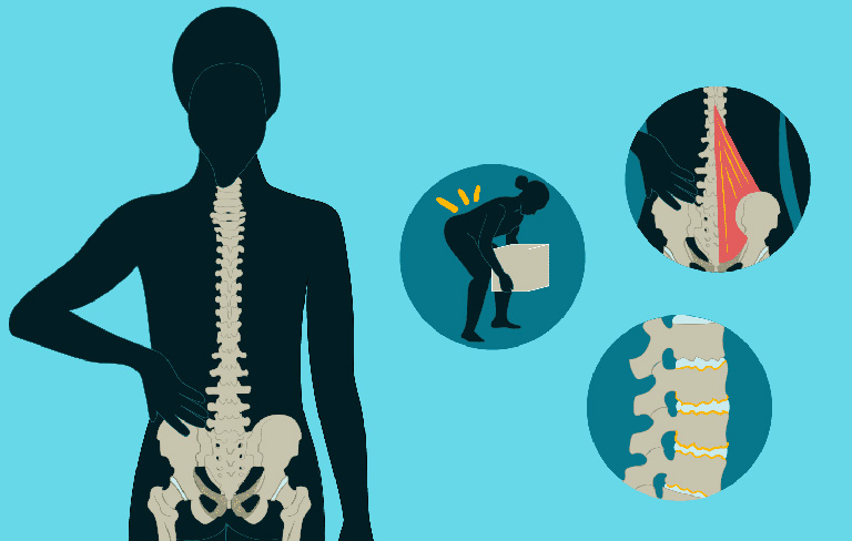 phòng ngừa thoái hóa cột sống lưng