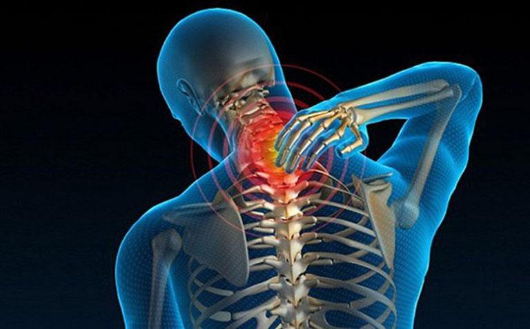 Các rễ thần kinh và tủy sống bị chèn ép do gai xương