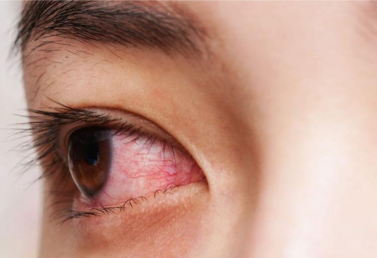 Bệnh viêm đa khớp có nguy hiểm không