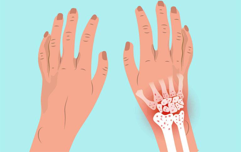 viêm khớp cổ tay phải