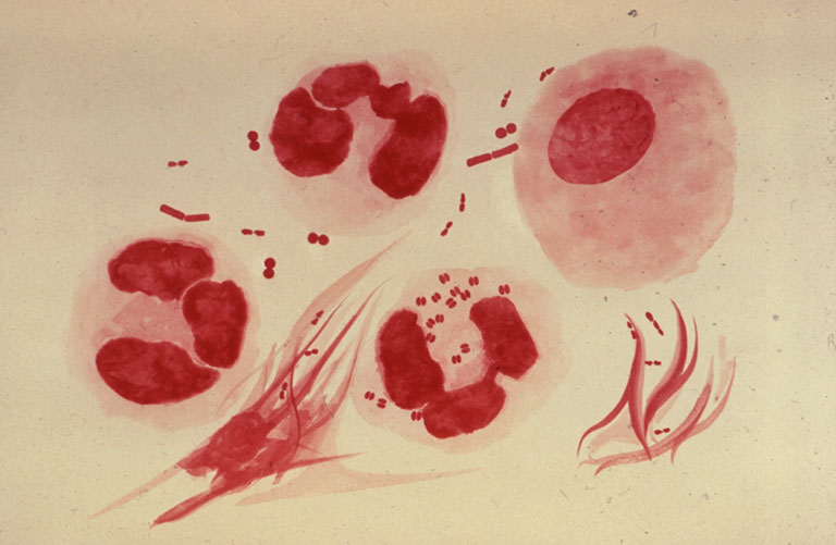 Viêm khớp nhiễm khuẩn bệnh học