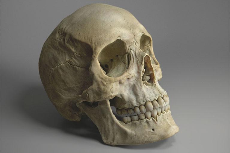 khối xương sọ