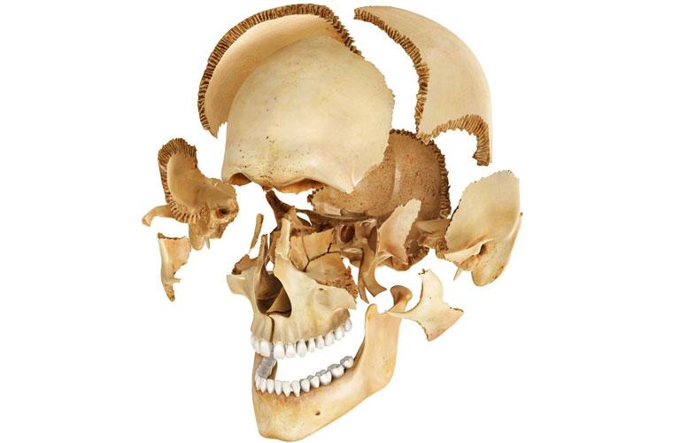 hộp sọ người có bao nhiêu xương