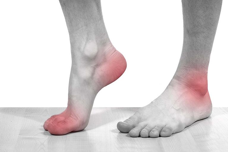 Thuốc Gout Allopurinol được sử dụng để điều trị bệnh gout mãn tính