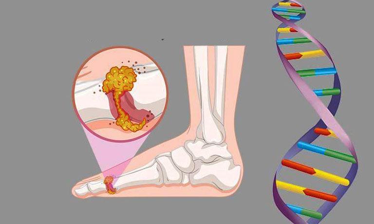 bệnh gout có di truyền không