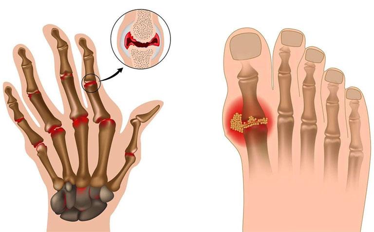 bệnh gout ăn cà chua không