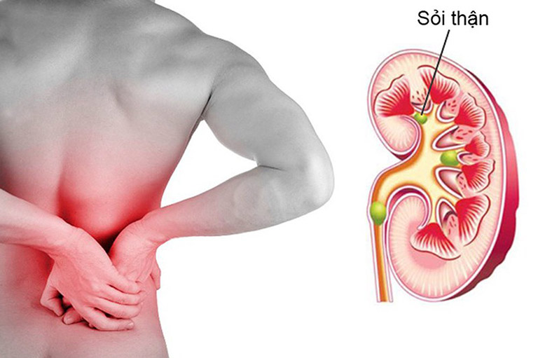 biến chứng bệnh gout tại thận
