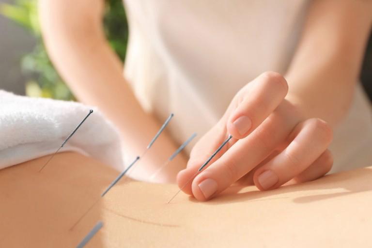 Quá trình châm cứu bao gồm 2 hình thức là châm và cứu