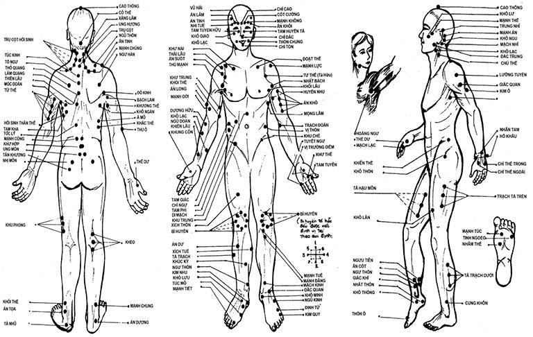 Bác sĩ sẽ sử dụng kim châm vào các huyệt đạo trên cơ thể nhằm đáp ứng mục tiêu điều trị nhất định