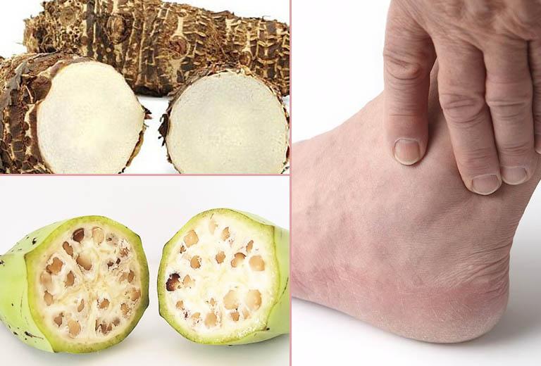 Cách chữa bệnh gout bằng củ ráy, chuối hột có khỏi không?