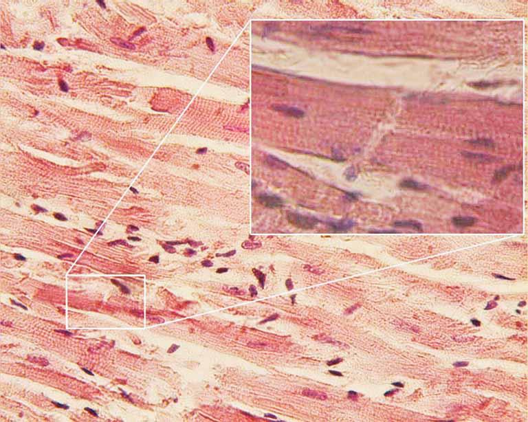 Tế bào cơ tim