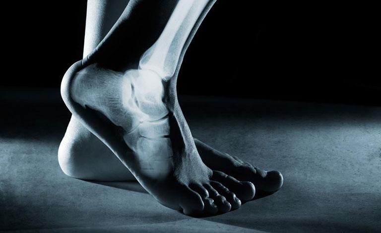 Viêm gân Achilles