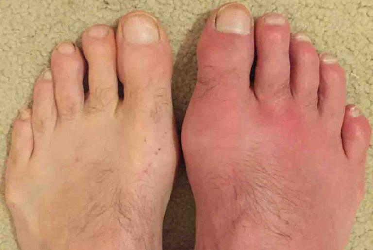 Khớp viêm, sưng, nóng, đỏ là biểu hiện đặc trưng của bệnh gout