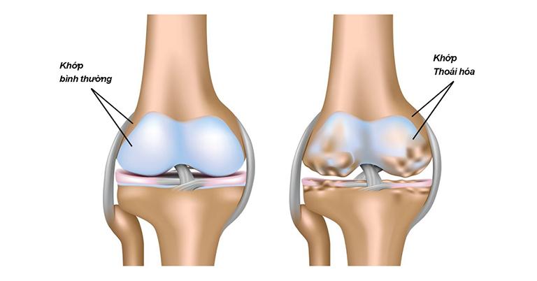 Thoái hóa khớp thường gặp nhất ở các khớp chịu sức nặng cơ thể