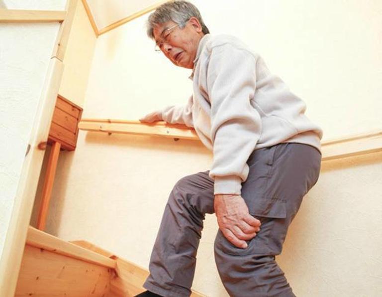 Người bệnh thoái hóa khớp dễ bị hạn chế về khả năng vận động