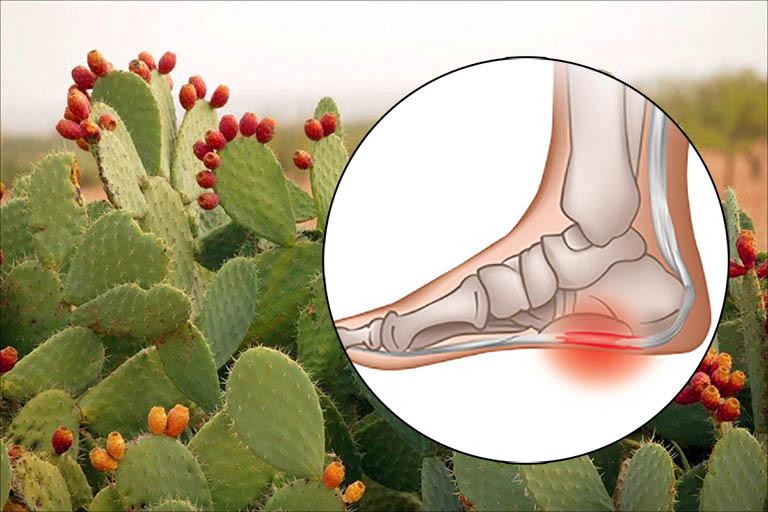 Cách dùng xương rồng trị gai gót chân