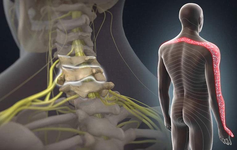 Gai cột sống chèn dây thần kinh