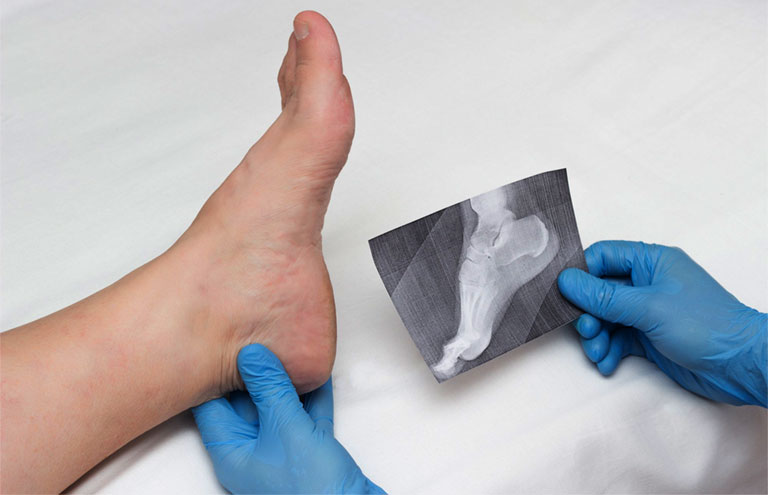 gai gót chân chữa bằng cách gì
