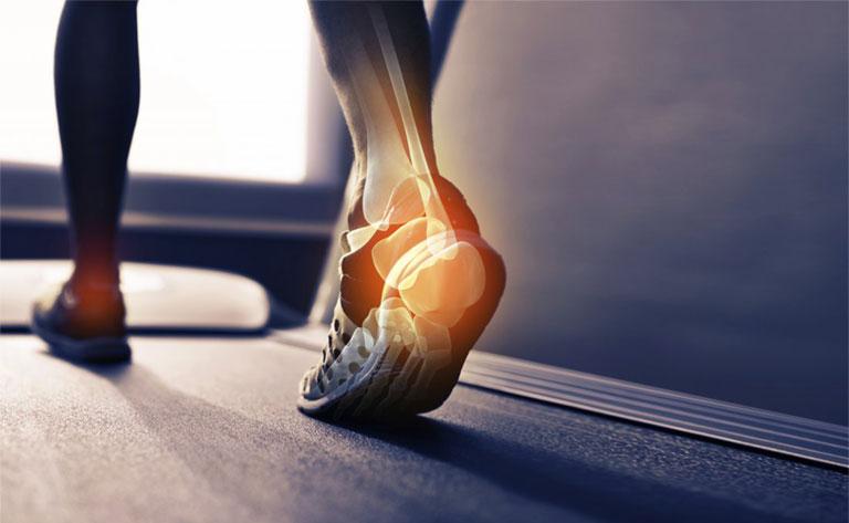 nguyên nhân gai xương gót chân