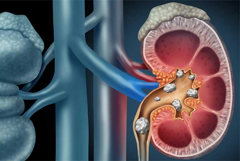 tăng acid uric máu gây sỏi thận