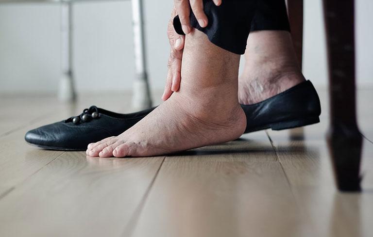Tràn dịch khớp cổ chân
