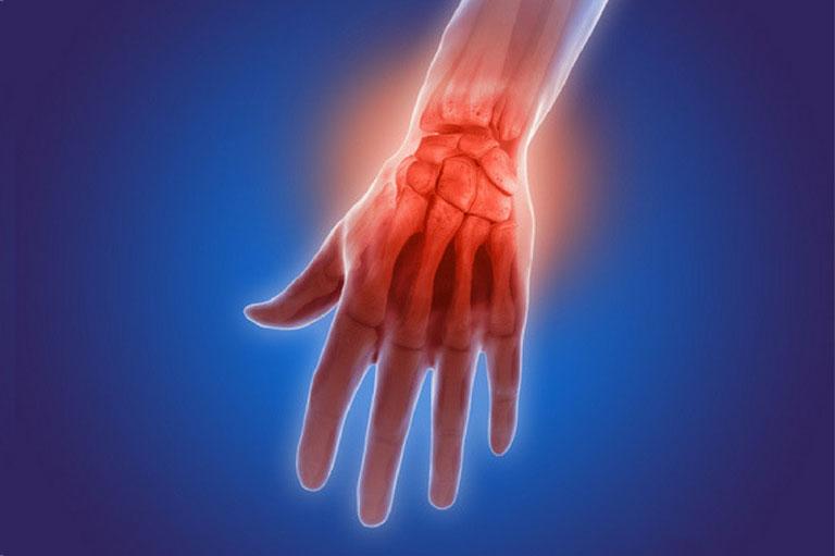 nguyên nhân tràn dịch khớp cổ tay