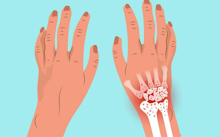 hình ảnh tràn dịch khớp cổ tay