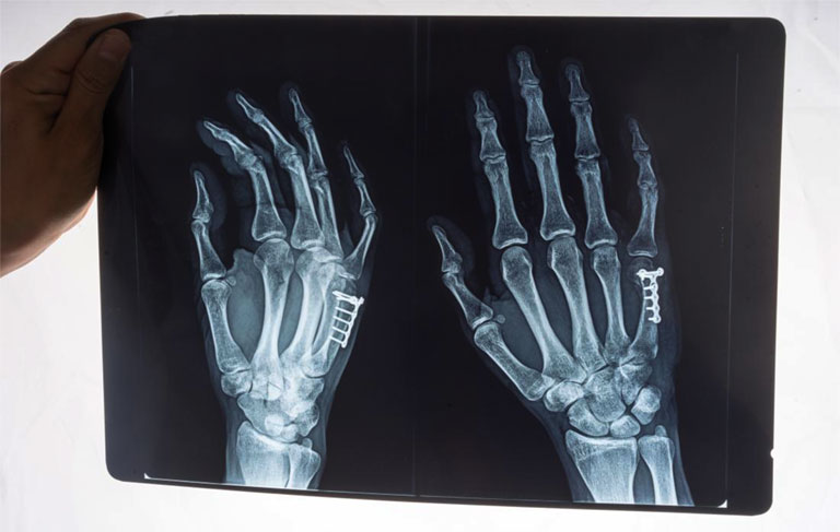tràn dịch khớp cổ tay có nguy hiểm không