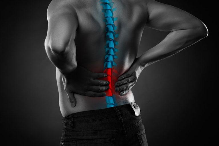 Bệnh viêm cột sống dính khớp có chữa khỏi được không
