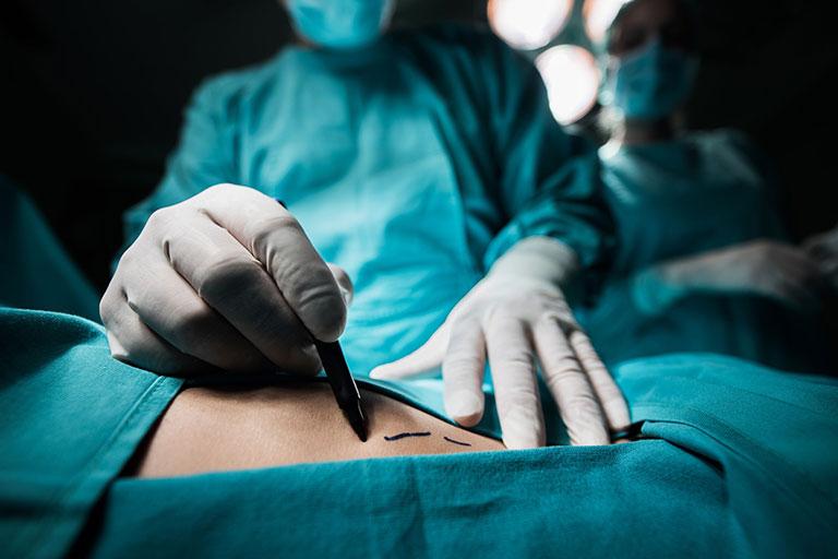 phẫu thuật viêm cột sống dính khớp