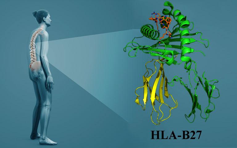 Viêm cột sống dính khớp có di truyền không
