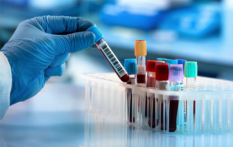 Chỉ định xét nghiệm acid uric