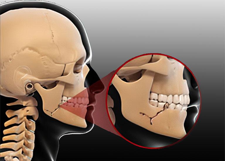 Gãy xương hàm dưới bao lâu thì lành