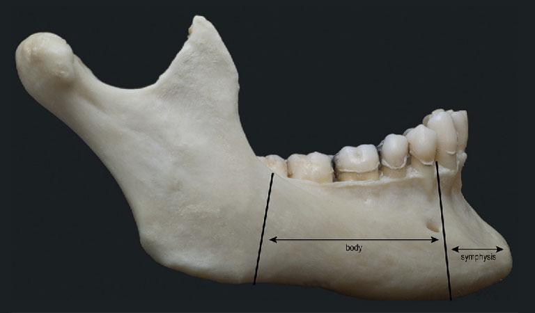 Giải phẫu xương hàm dưới