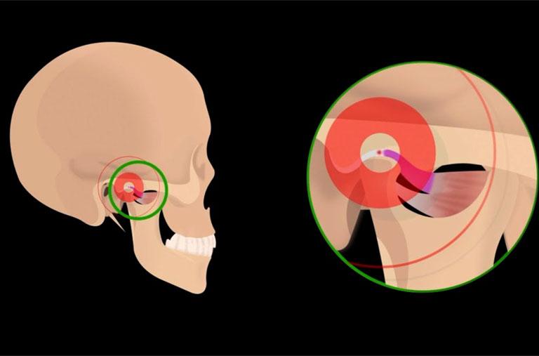 Viêm tủy xương hàm