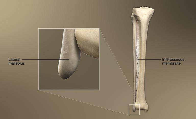 Phần xa của xương mác tạo nên mặt bên của mắt cá chân