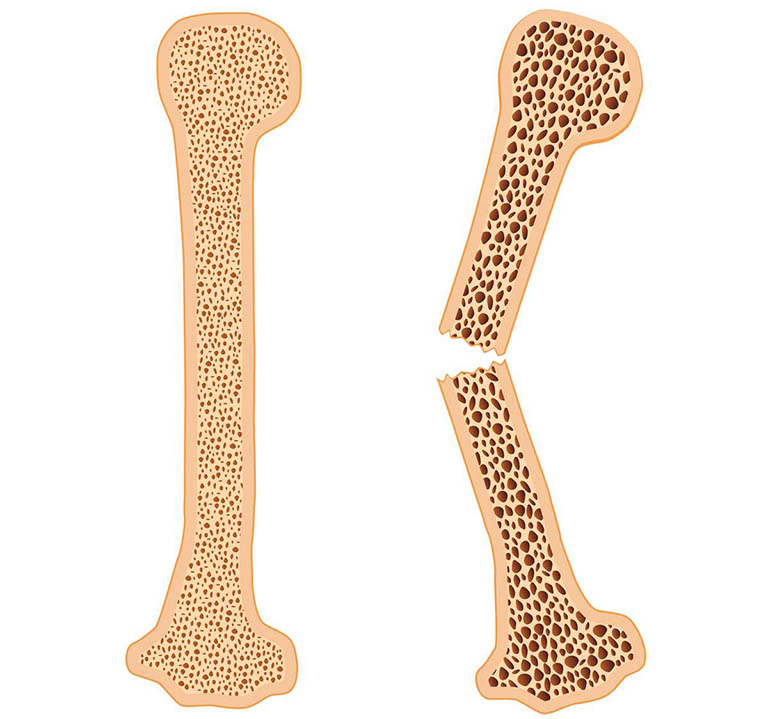 Bệnh loãng xương khiến xương mỏng do giảm mật độ xương